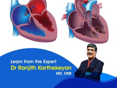 Complex Congenital Heart Disease
