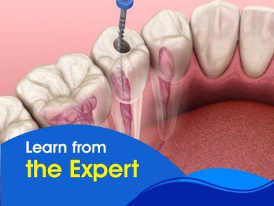 Conservative Dentistry and Endodontics